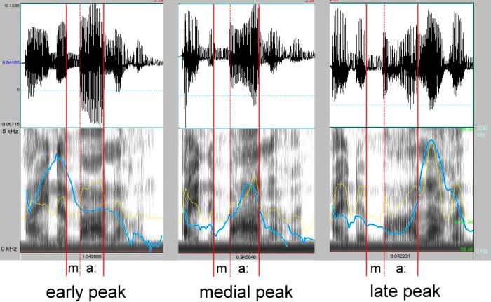 Fig.1 showing acoustic analyses of early, medial, and late peak productions